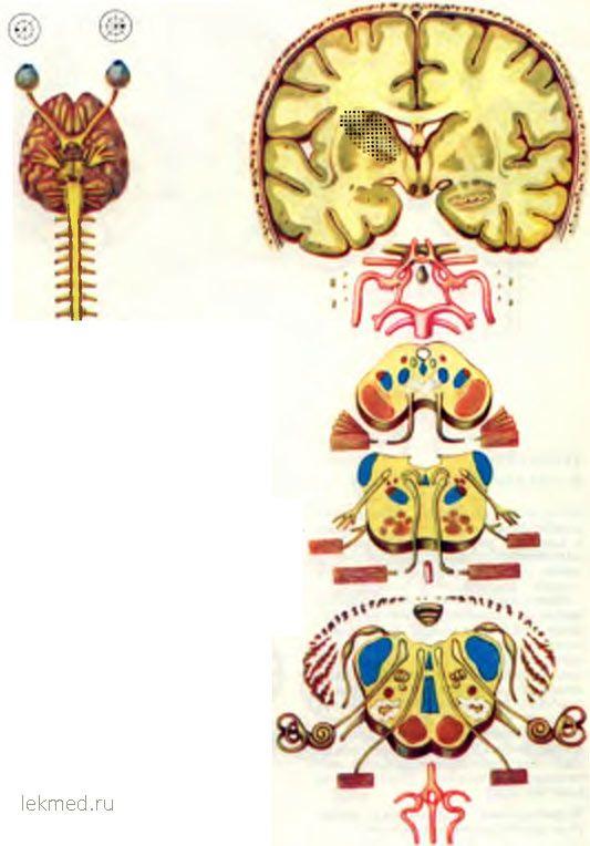тромбоз артерій чечевицеобразного ядра і смугастого тіла