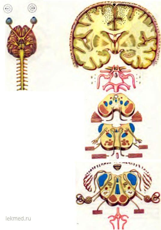 ТРОМБОЗ верхнього сагітального синусів