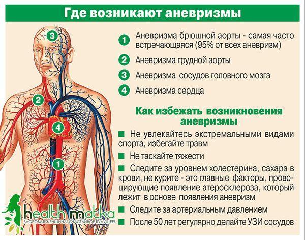 Схема - де виникають аневризми?