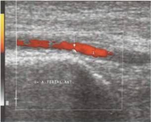 Кальциновані атеросклеротичні бляшки в передній великогомілкової артерії