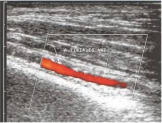 Кальцинати стінки заднебольшеберцовой артерії