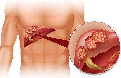 Чим небезпечна для людини кіста печінки і як вона проявляється?