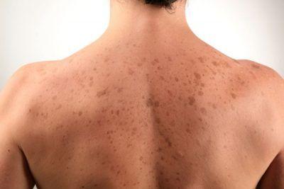 Що означає поява печінкових плям на тілі?