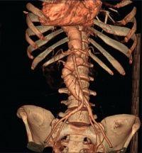 знімок черевної порожнини на томографі
