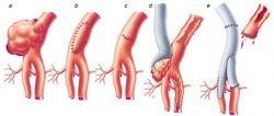 видалення аневризми на артерії