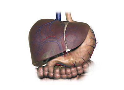 Що таке фокальна нодулярна гіперплазія печінки