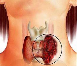 Доброякісна пухлина щитовидної залози