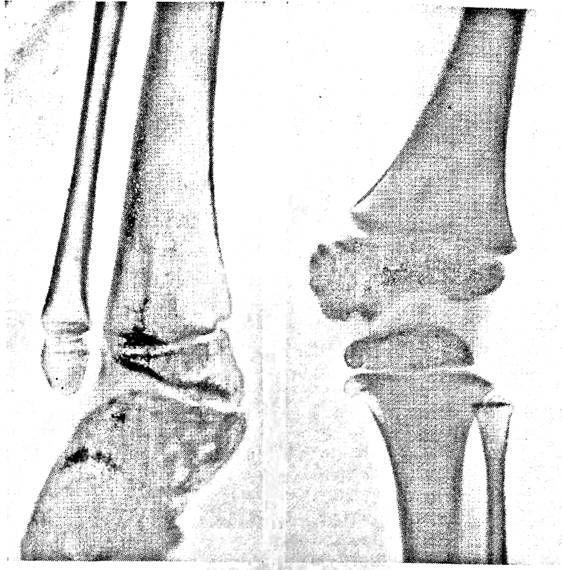 Гемімеліческая дисплазія. Поразка медіальної половини дистального епіфіза великогомілкової кістки