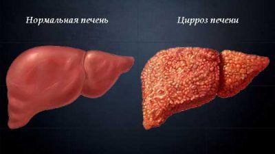 Характерні ознаки та лікування цирозу печінки у чоловіків і жінок