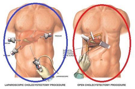 Хід операції лапароскопічної холецистектомії
