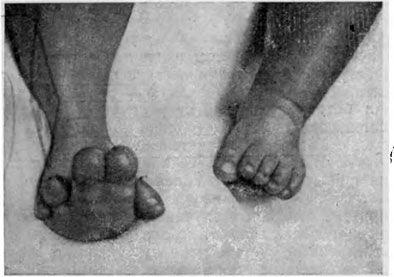 Частковий гігантизм стопи і пальців