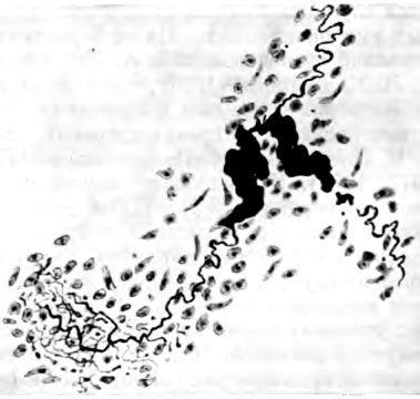 Набухання і аргірофілія претермінальній відділу чутливого закінчення