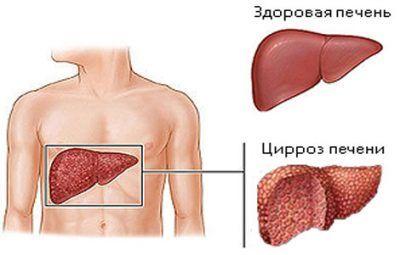 Ефективні способи діагностики цирозу печінки