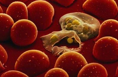 Етіологія, клінічна картина і методи терапії при паренхіматозної жовтяниці