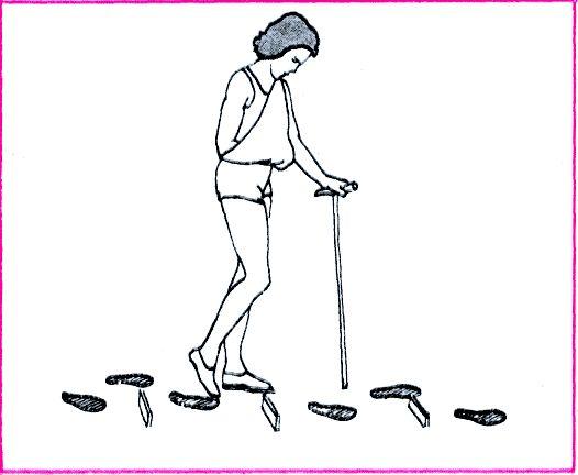 вчимося ходити після інсульту