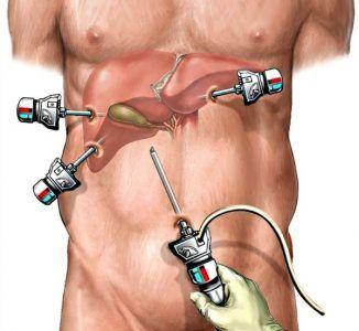 Як проводиться лапароскопія жовчного міхура і які її переваги?