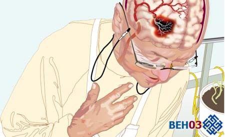 РЕГ судин головного мозку допоможе уникнути інсульту