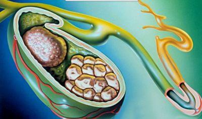 Якою має бути дієта при холециститі?