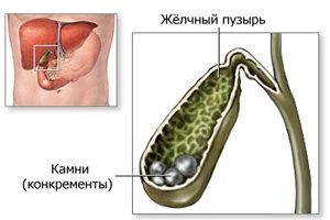 Калькульознийхолецистит: лікування каменів в жовчному міхурі