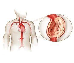 Клінічні прояви і лікування атеросклерозу черевної аорти