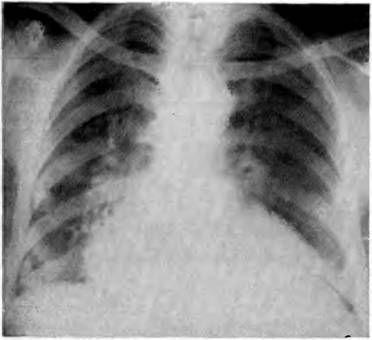 Інфаркт в нижньому відділі лівої легені