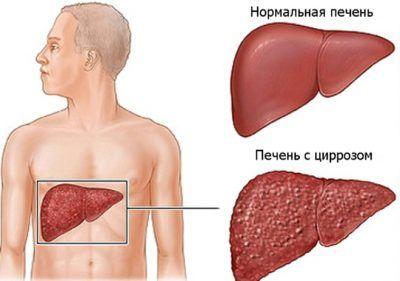 Необхідна дієта при виявленні цирозу печінки