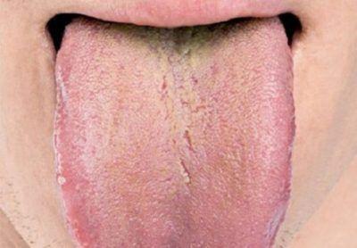 Про що свідчить гіркота в роті і жовтий або білий наліт на язиці