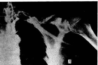 постстенотіческая аневризма пахвовій артерії