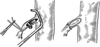 Тромбінтімектоміі з верхньої брижової артерії