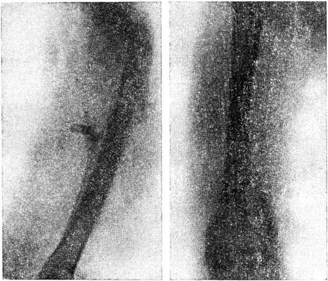 Остеомієліт стегна, патологічний перелом