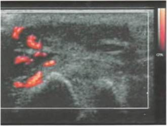 Саркома плюс-фаланговий суглоба першого пальця
