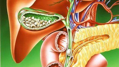 Особливості харчування при наявності каменів у жовчному міхурі