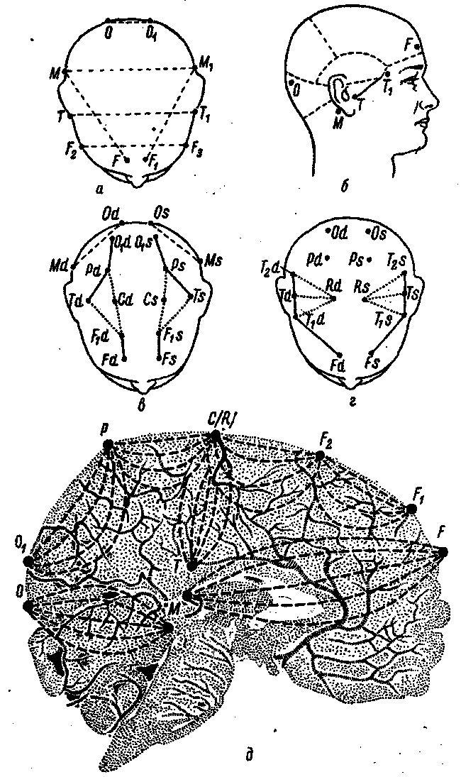 Схема розташування електродів