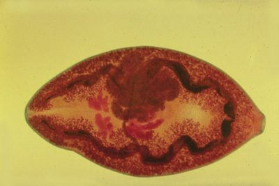 Паразитарні організми: ознаки наявності печінкового сисуна