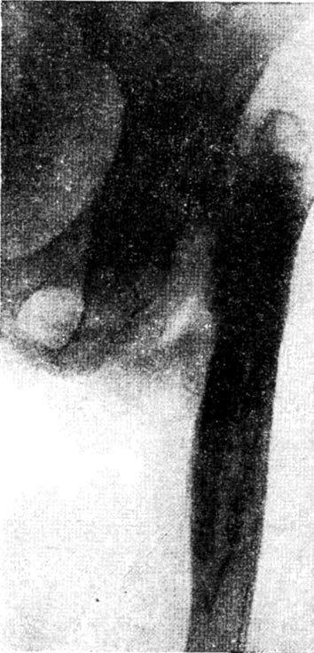 Остеомієліт проксимального відділу стегна, коксит, деструкція головки і шийки