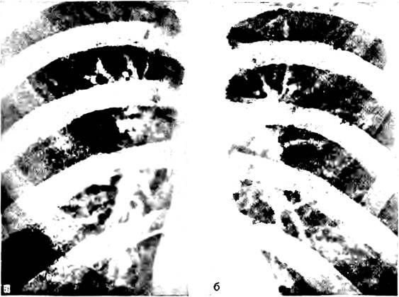 Рентгенівське зображення коренів легких
