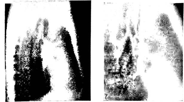 Бічні томограми правої легені