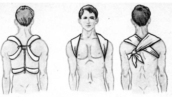 Іммобілізація при переломі ключиці ватно-марлевими кільцями і косинкою