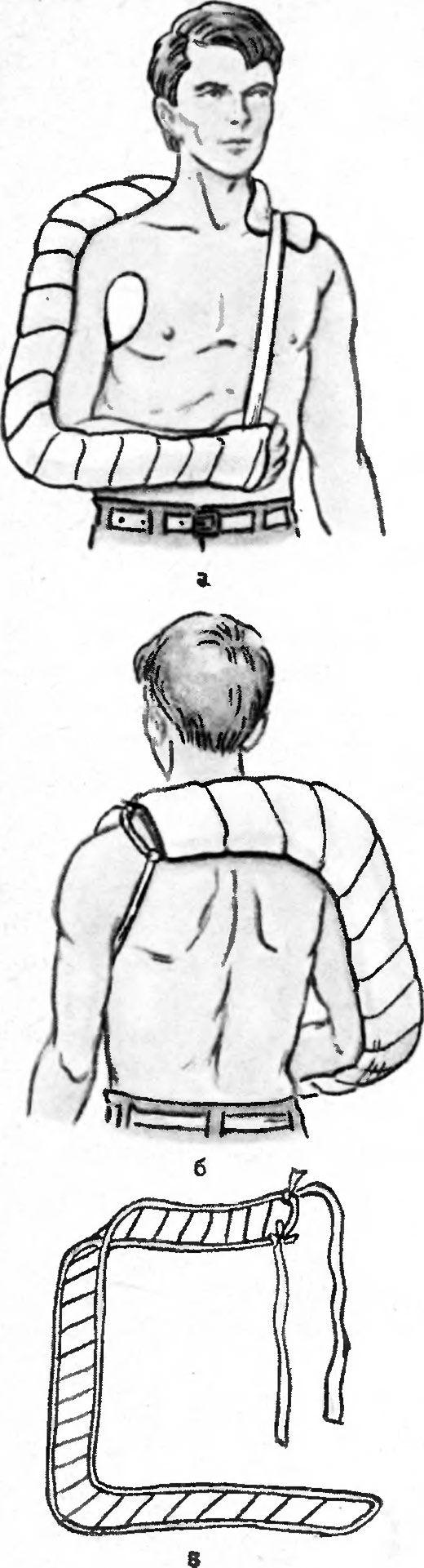 Іммобілізація перелому плеча шиною Крамера
