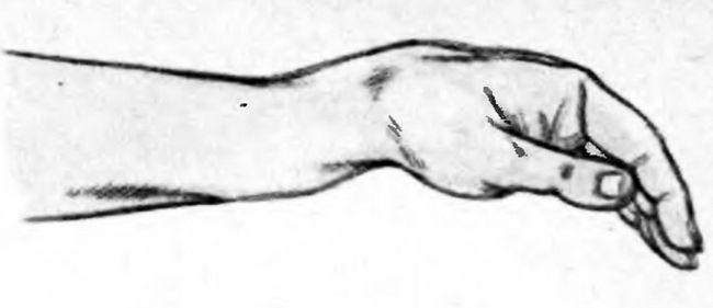 Деформація передпліччя при переломі променевої кістки