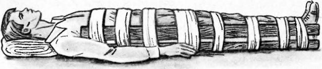 Іммобілізація перелому стегна за допомогою дощок