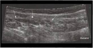 Частковий розрив литкового м`яза
