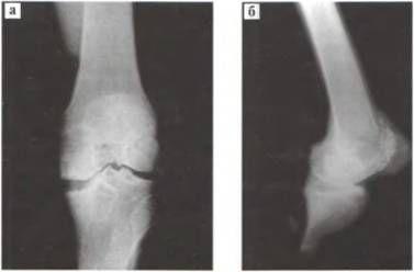 Деформуючий артроз. Рентгенограми колінного суглоба,