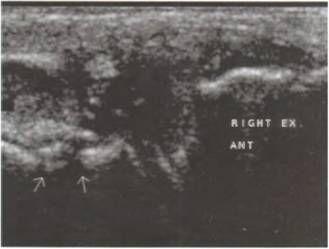 Деформуючий артроз колінного суглоба. Звуження суглобової щілини, виражені оссіфікати і повне пролабирование меніска