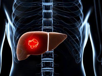 Причини, симптоми і лікування гемангіоми печінки