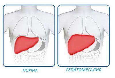Причини збільшення анатомічного розміру печінки у людини