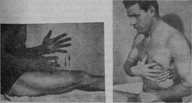 рубленіє при масажі