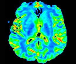 Проведення мрт головного мозку з контрастом