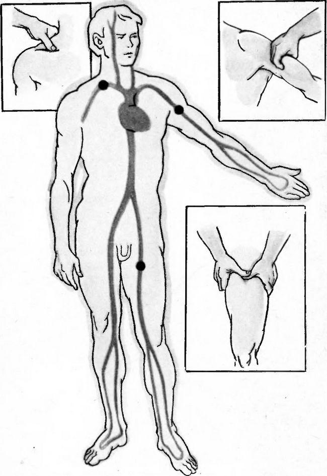 точки притиснення магістральних артерій