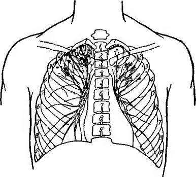Вогнищевий туберкульоз легень